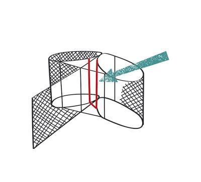 nielurajoitin-havainnekuva